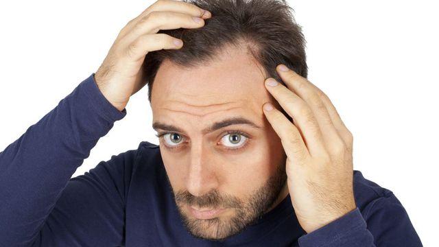 coupe de cheveux homme quand on les perd